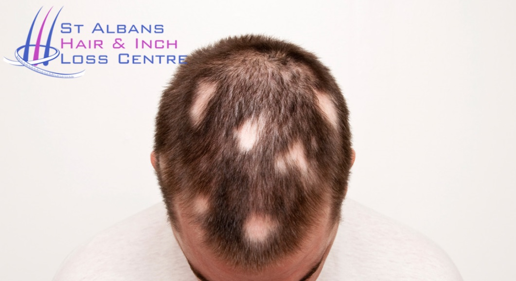 St Albans Hair And Inch Loss Centre Laser Hair Removalhair Loss